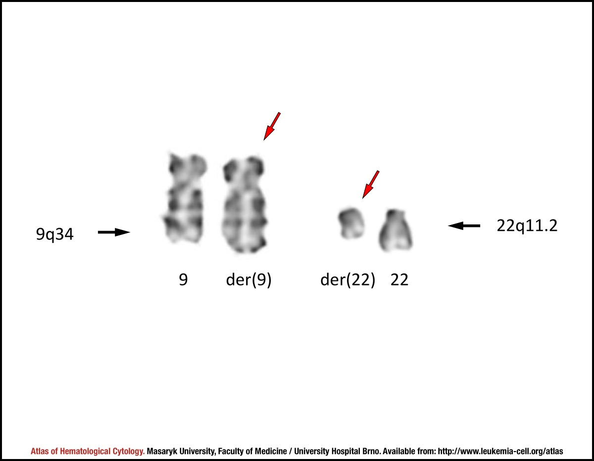 G Banded Partial Karyotype Of Translocation T922q34q112
